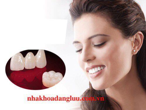 quy trình làm răng sứ toàn sứ