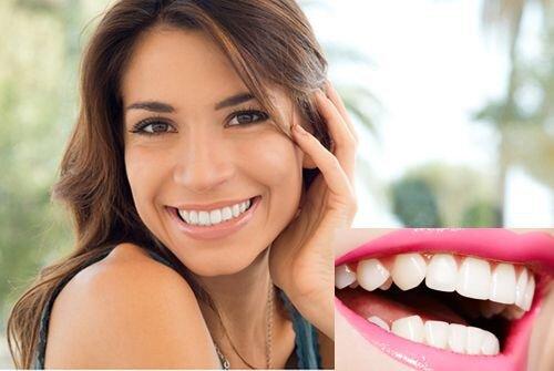 Cách giữ cho răng trắng sáng