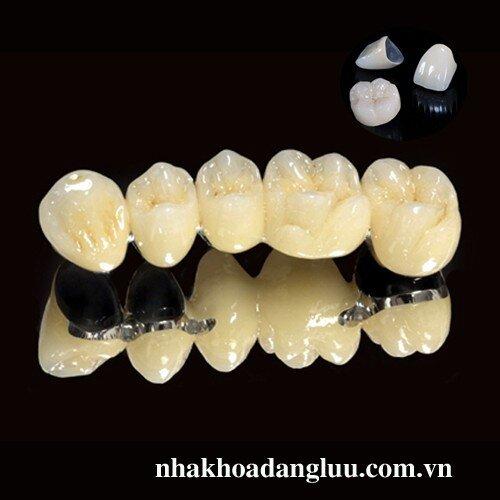 Răng đã lấy tủy có nên bọc sứ ?