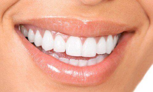Răng đẹp cần đạt những tiêu chuẩn nào