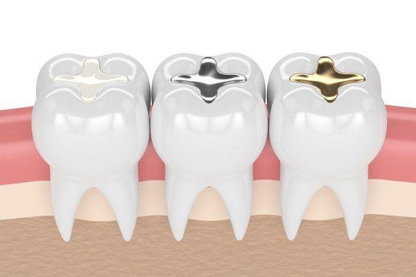 Bệnh ê buốt răng có chữa hết được không