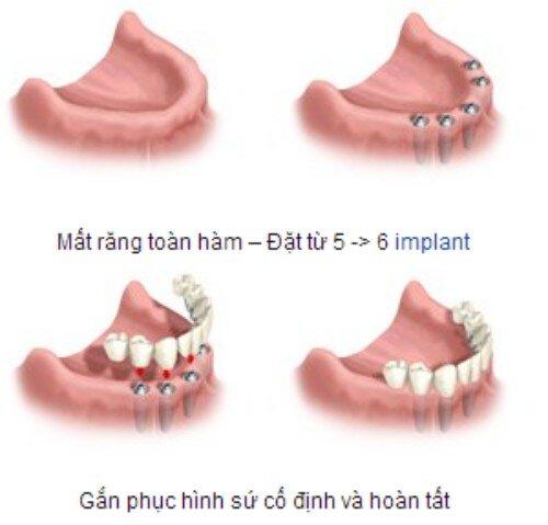 Răng giả nguyên hàm cố định