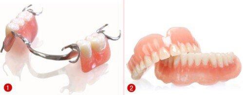 Răng giả nguyên hàm tháo lắp