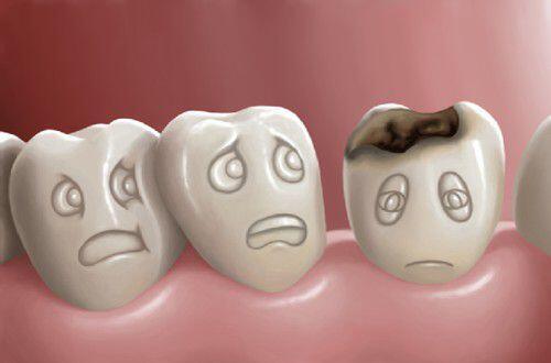 răng hàm sâu không điều trị có nguy hiểm