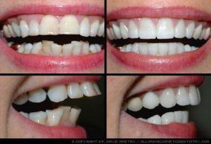 Răng hô có di truyền không ?