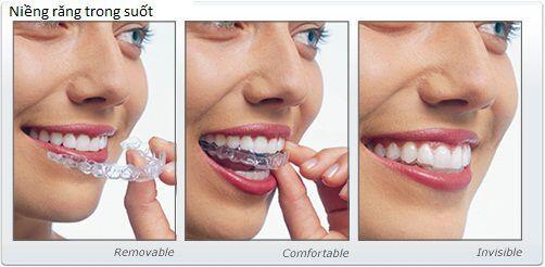 Niềng răng hô trong bao lâu thì có hiệu quả ?