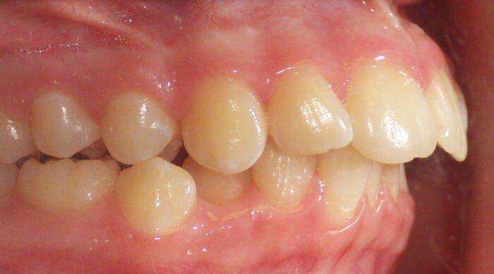 chỉnh hình răng hô nướu
