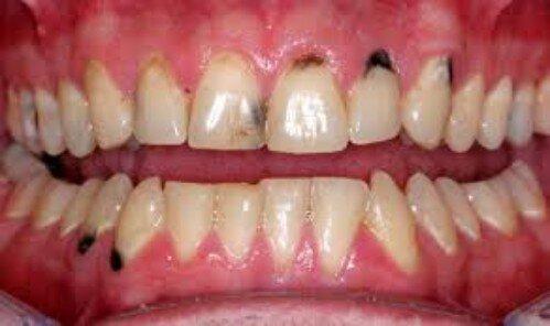 Răng hỏng gây hại cho cơ thể