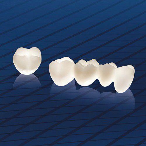 Răng Implant có gây hại cho cơ thể không ?