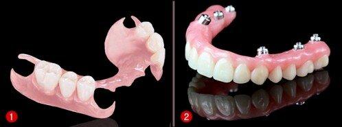 Răng implant tháo lắp