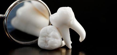 Răng khôn chưa mọc có sao không?
