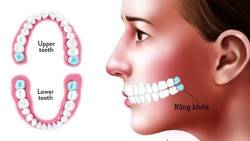 Răng khôn gồm bao nhiêu cái ?