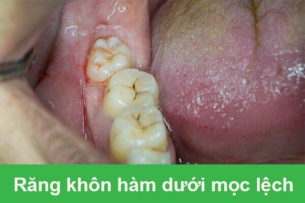 răng khôn hàm dưới mọc lệch