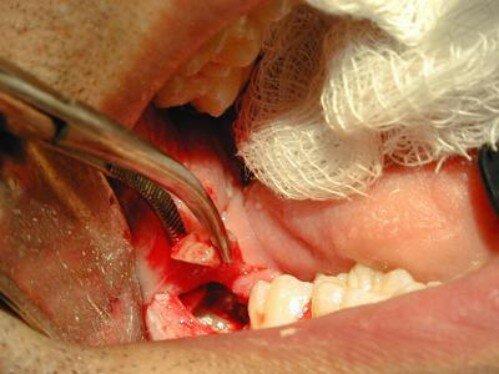 Răng khôn khi nào mọc ?