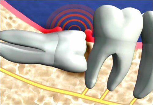 Răng khôn mọc lệch có nên nhổ hay không?