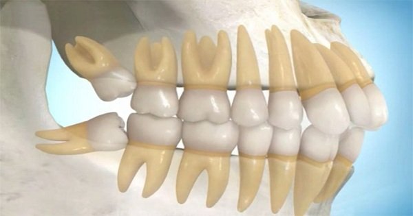 Răng khôn khi nào mọc?