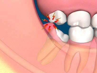 Nhổ răng khôn bao lâu sẽ lành ?