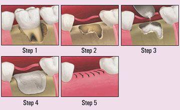 Răng khôn và cách xử trí