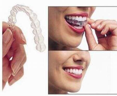 Răng không đều phải làm sao?