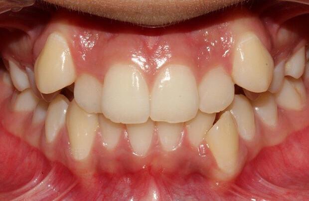 răng không đều phải làm sao