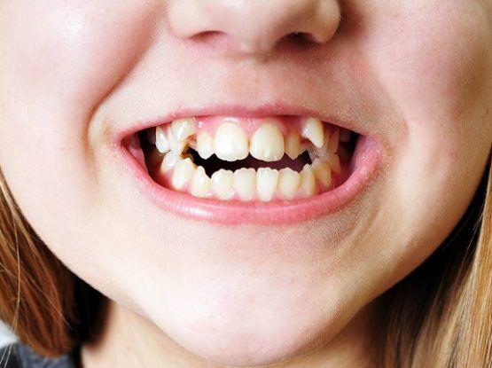Răng mọc khấp khểnh phải làm sao?