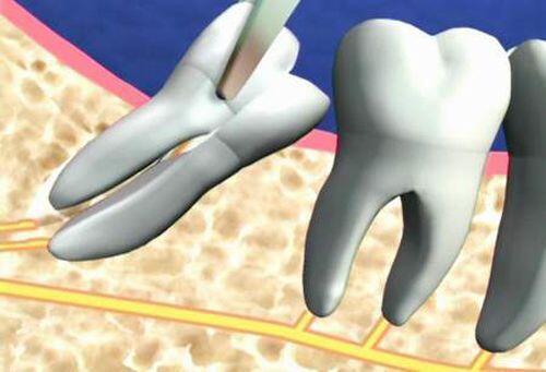 Răng nanh mọc ngầm nên nhổ ở đâu? Ở đâu uy tín nhất..