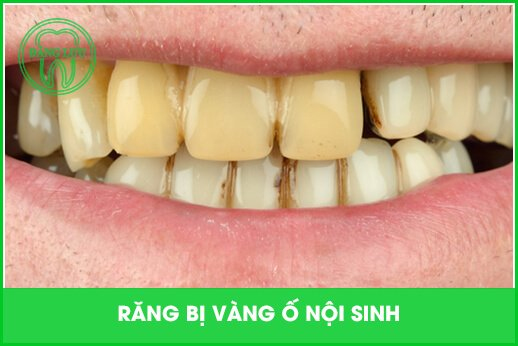 răng bị vàng do yếu tố nội sinh