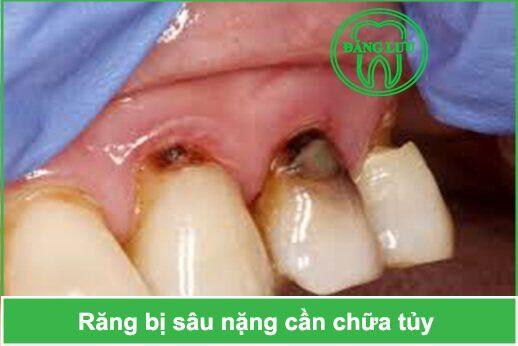 nhổ răng bị sâu