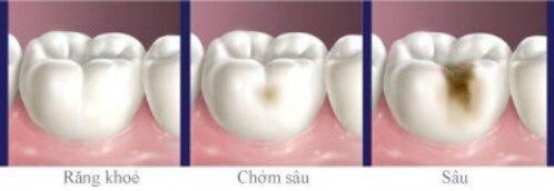 Bọc răng sứ bị đau nguyên nhân do đâu
