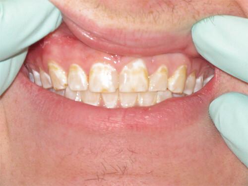 răng sỉn màu