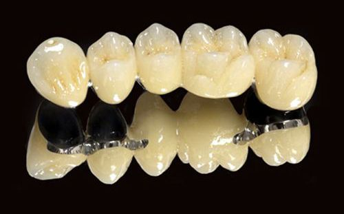 Phương pháp phục hình cho răng chết tủy