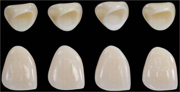 răng sứ cao cấp