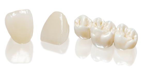 Răng sứ Cercon có bị xỉn màu không?