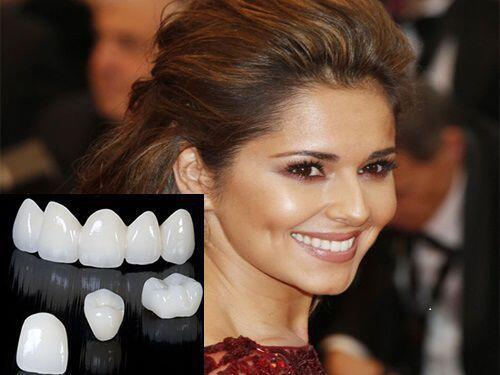 Răng sứ Cercon giá bao nhiêu ?