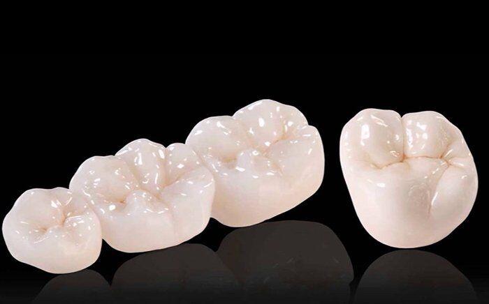 răng sứ cercon HT
