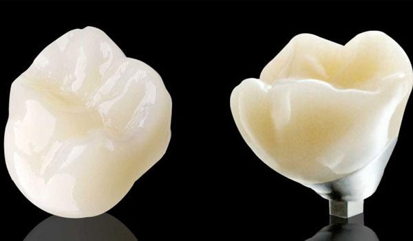Răng sứ không kim loại Cercon là gì?