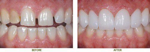 răng sứ không kim loại có bị xỉn màu không