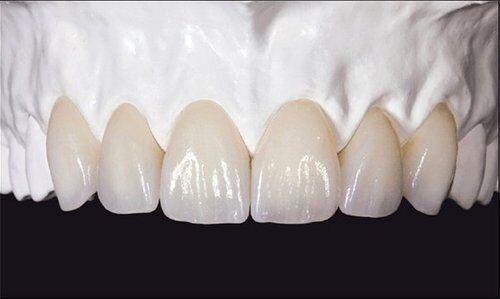 Răng sứ không kim loại Zirconia là gì?