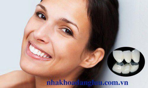 Răng sứ kim loại thường có tốt không ?