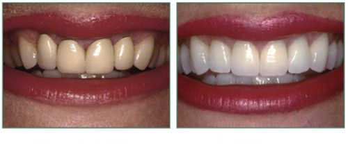 Răng sứ kim loại thường có tốt không? 1