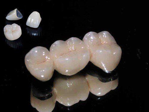 Răng sứ kim loại và răng toàn sứ có gì khác nhau?