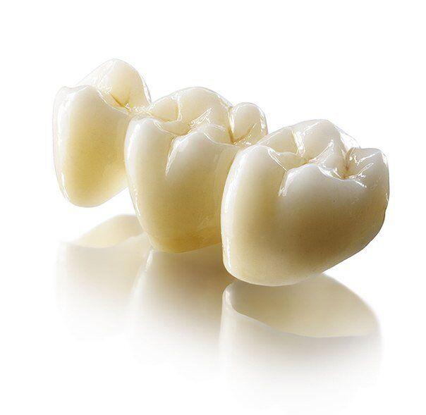 Răng sứ Lava Plus bảo hành bao nhiêu năm?