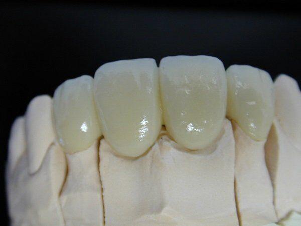 Răng sứ Titan bị đen phải làm sao?