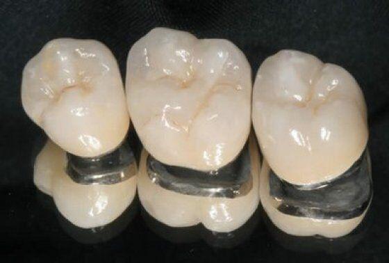 Răng sứ Titan có bị xỉn màu không?