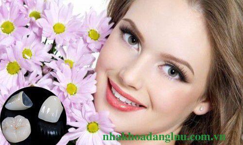 Phương pháp trồng răng sứ hiện đại, hiệu qủa cao