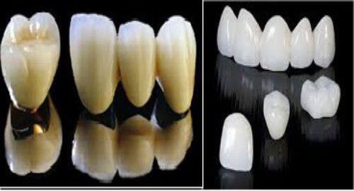 Răng sứ titan có tốt không? 3