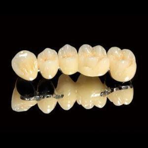 Bọc răng sứ titan có ưu điểm gì? 2