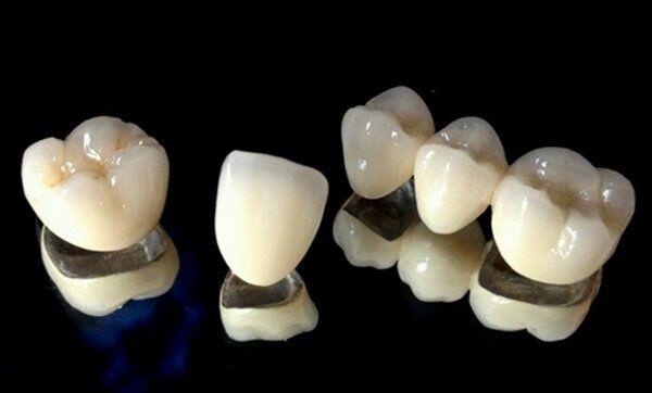 Răng sứ kim loại là gì?
