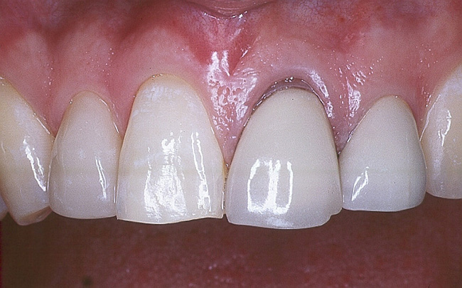 so sánh răng toàn sứ với răng sứ kim loại