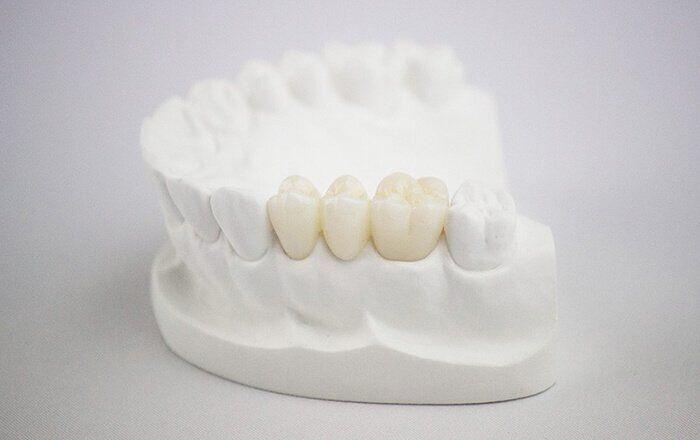 Giải pháp hiệu quả gia tăng độ bền khi bọc răng sứ Cercon HT